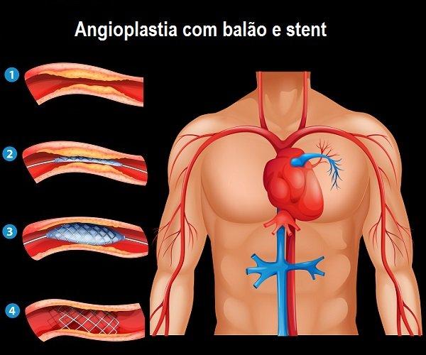 Angioplastia